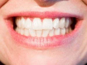 Tips for Getting a Brighter Smile